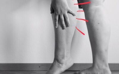 Restless legs syndrom – Willis Ekbom sjukdom